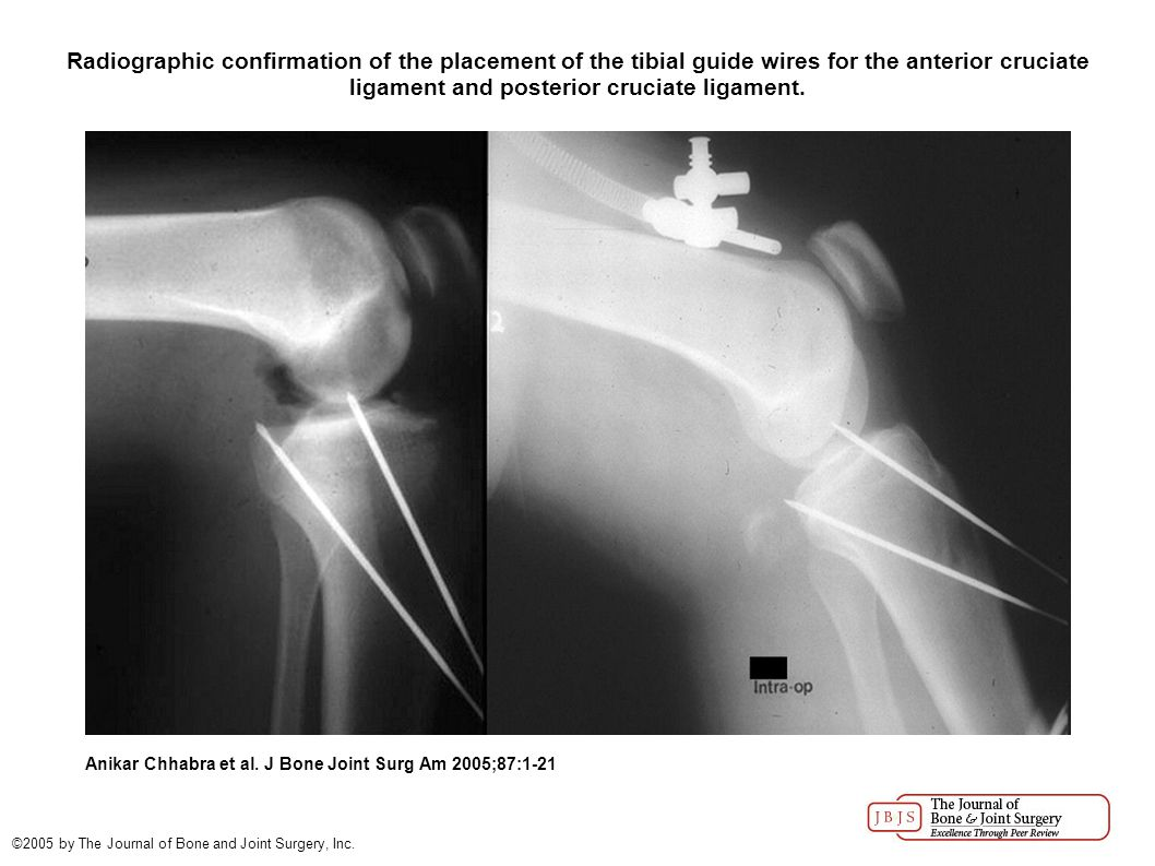 Radiographic confirmation of the placement of the tibial guide wires for the anterior cruciate ligament and posterior cruciate ligament.