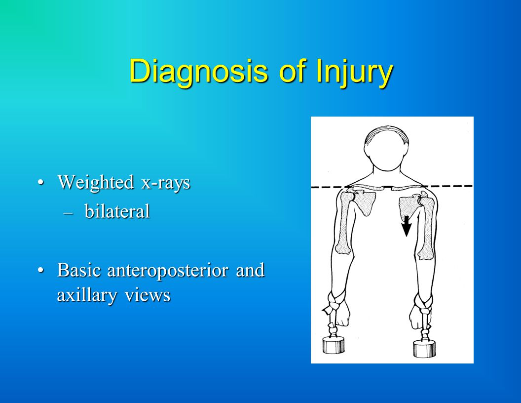 Diagnosis of Injury Weighted x-raysWeighted x-rays – bilateral Basic anteroposterior and axillary viewsBasic anteroposterior and axillary views