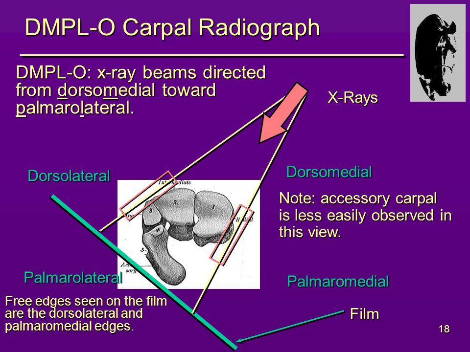 18 DMPL-O Carpal Radiograph Dorsolateral Dorsomedial Palmarolateral Palmaromedial DMPL-O: x-ray beams directed from dorsomedial toward palmarolateral.