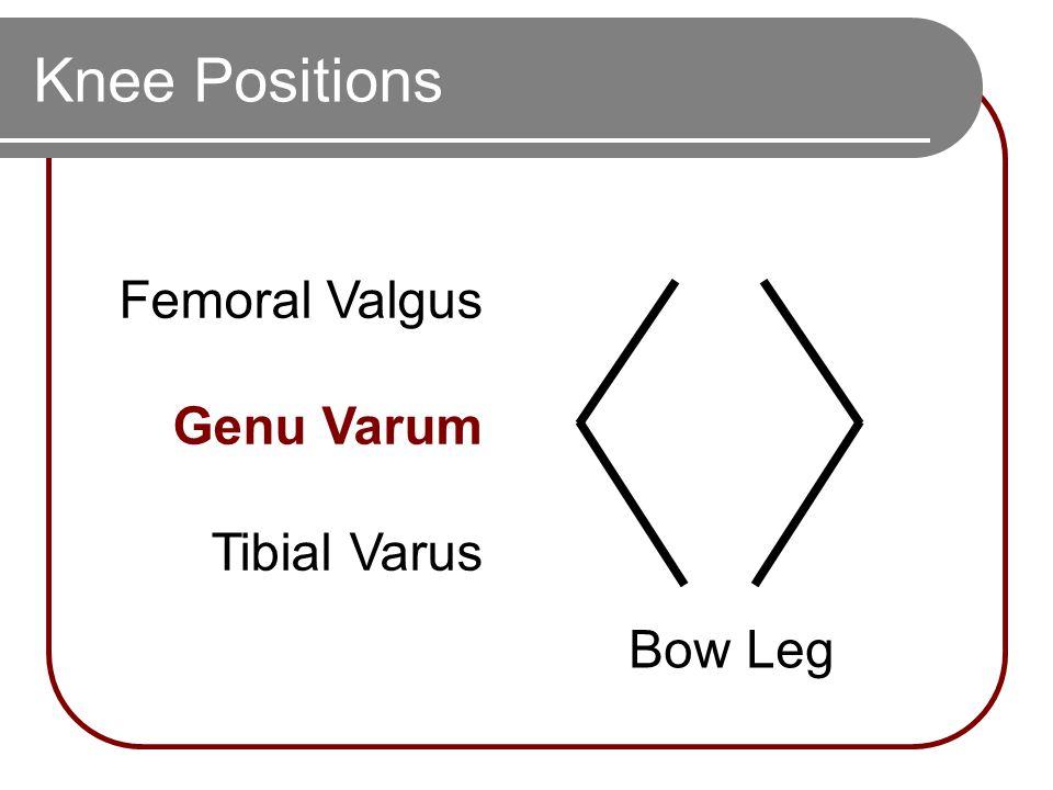 Knee Positions Bow Leg Femoral Valgus Genu Varum Tibial Varus