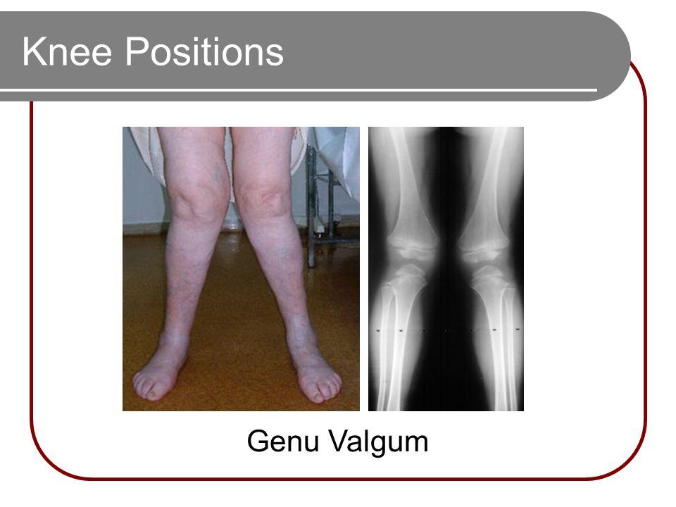 Knee Positions Genu Valgum