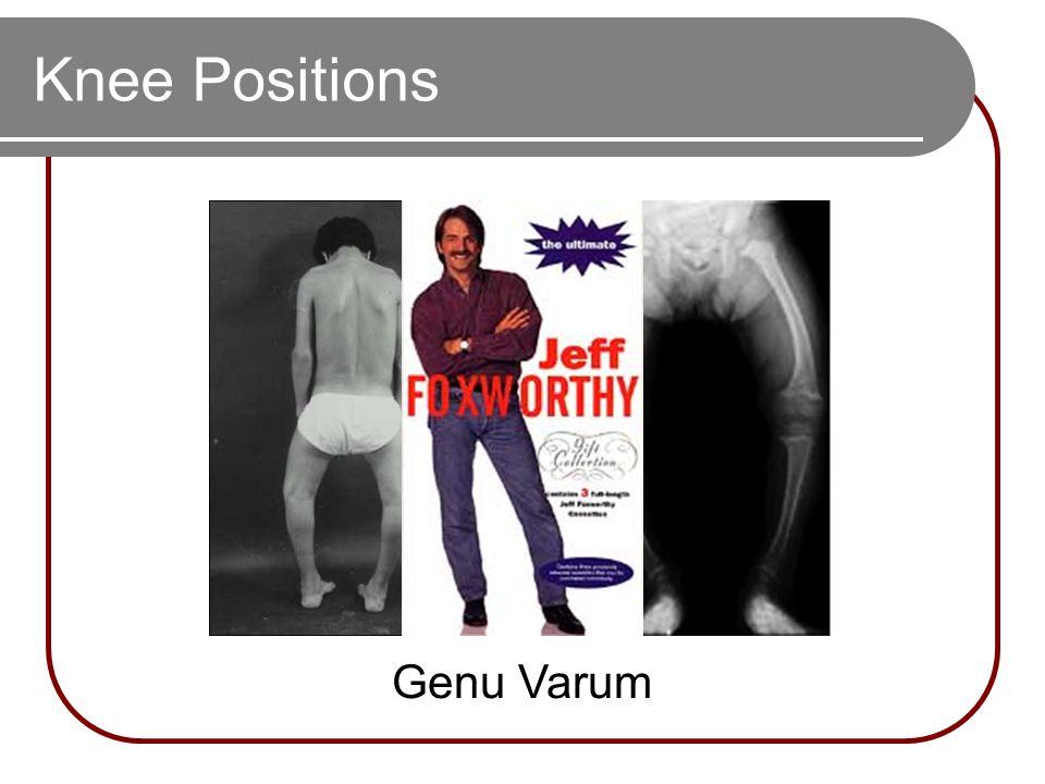 Knee Positions Genu Varum