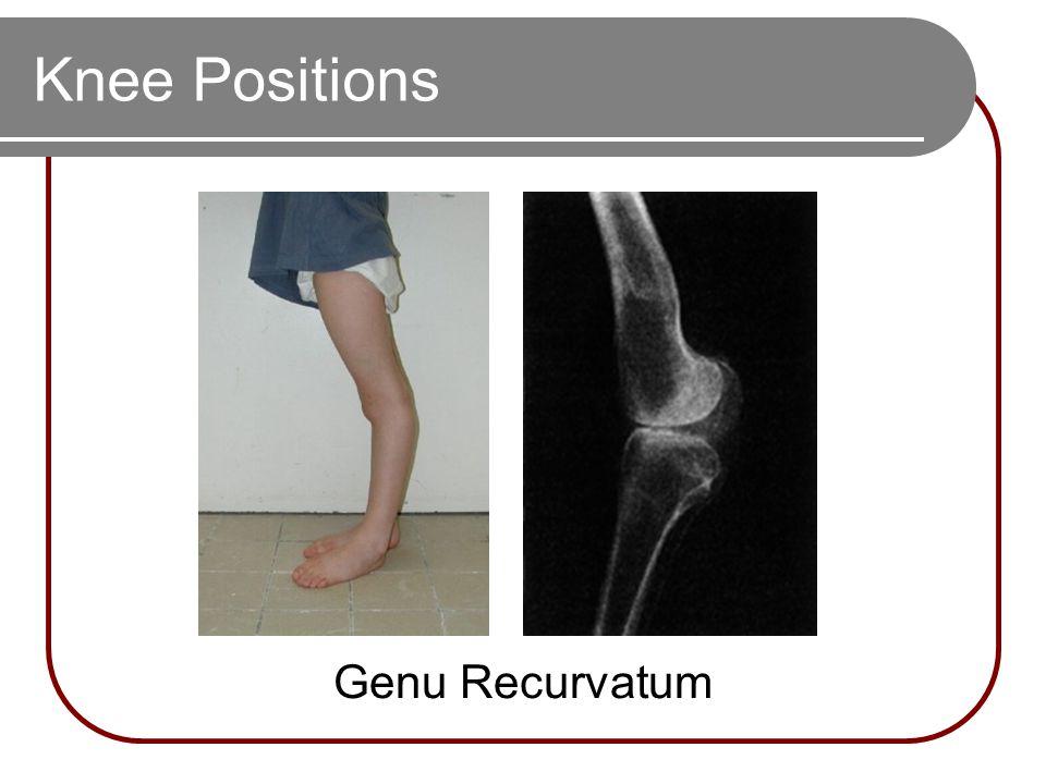 Knee Positions Genu Recurvatum