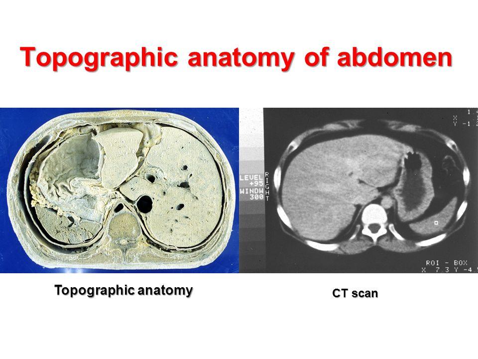 Topographic anatomy of abdomen CT scan Topographic anatomy