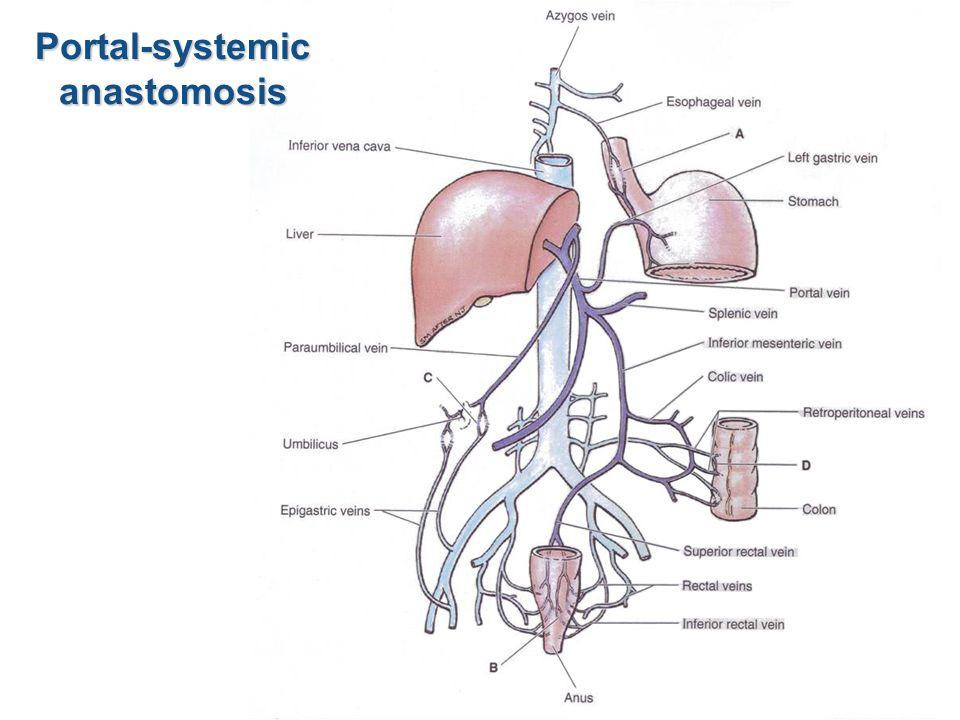 Portal-systemicanastomosis