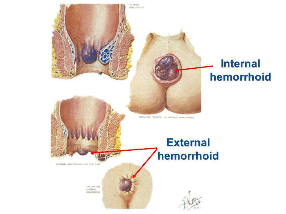Internalhemorrhoid Externalhemorrhoid
