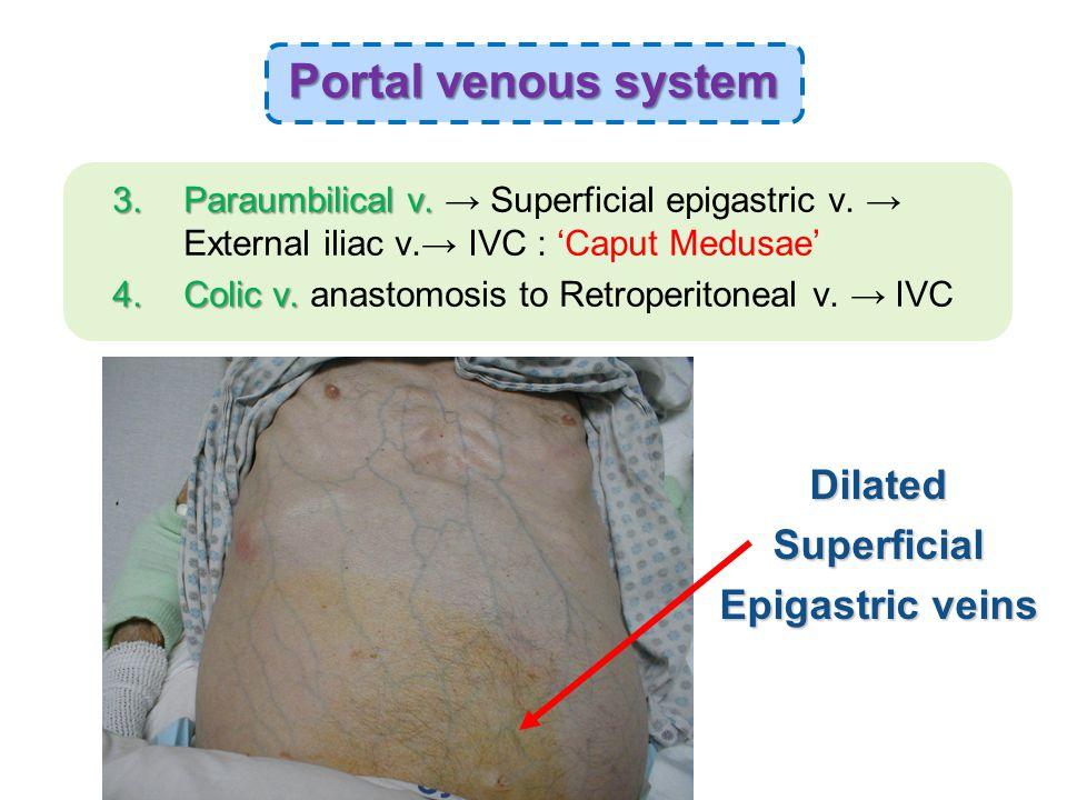 3.Paraumbilical v. 3.Paraumbilical v. → Superficial epigastric v.