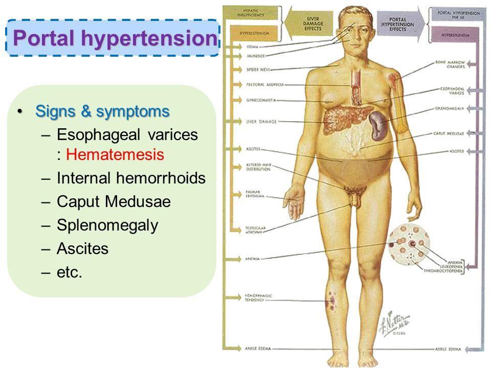 Signs & symptomsSigns & symptoms –Esophageal varices : Hematemesis –Internal hemorrhoids –Caput Medusae –Splenomegaly –Ascites –etc.