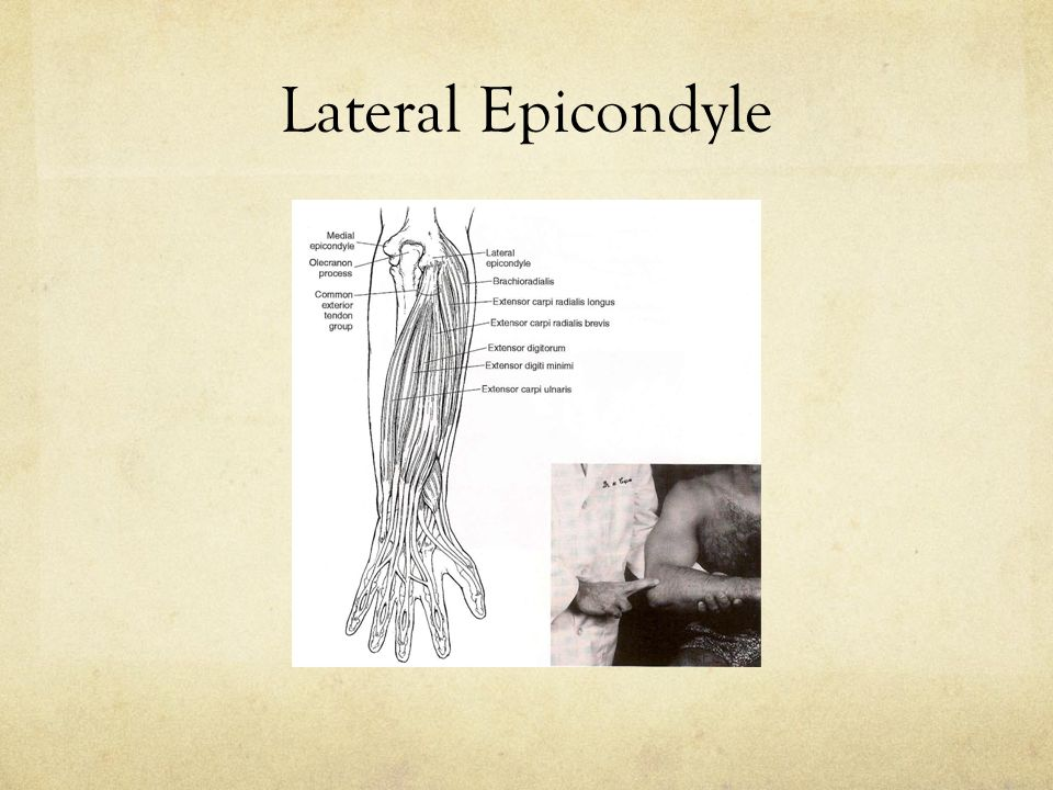 Radial Collateral Ligament Annular Ligament