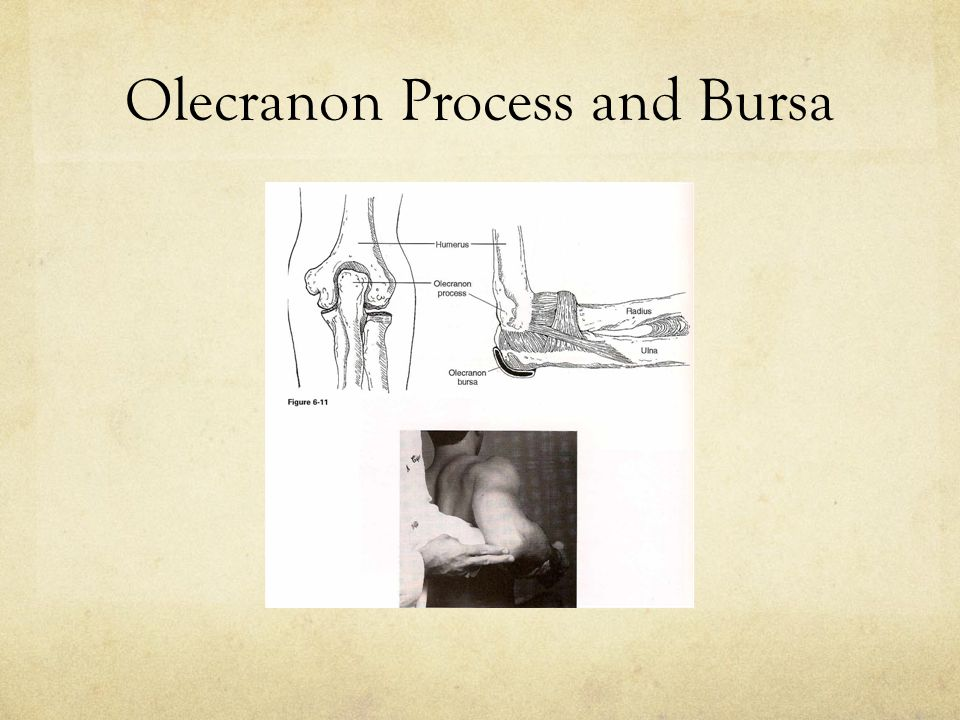 Olecranon Process and Bursa