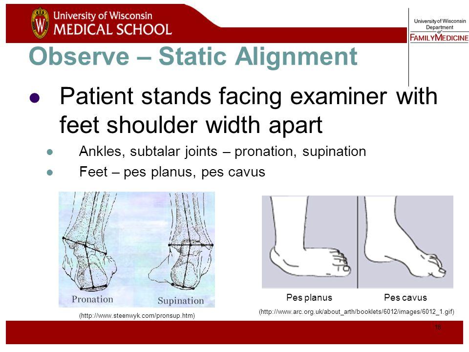 19 Patient then brings medial aspects of knees and ankles in contact Knees – genu valgum (I), genu varum (II) Observe – Static Alignment (http://www.orthoseek.com/articles/img/bowl1.gif) Genu valgumGenu varum