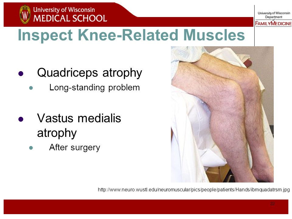 23 Normal Knee – Anterior, Extended