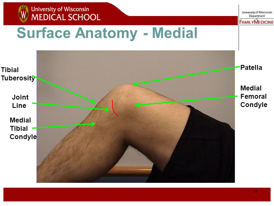 29 Palpation - Medial Medial Collateral Ligament (MCL)* Pes anserine bursa** Medial joint line