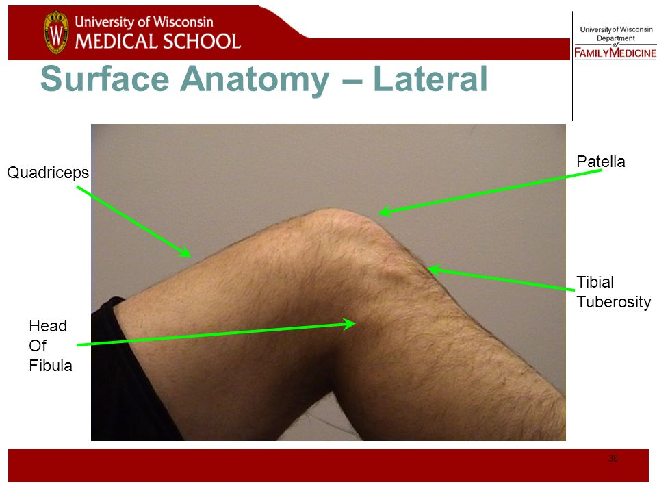 31 Palpation – Lateral* Lateral joint line Lateral Collateral Ligament (LCL)**
