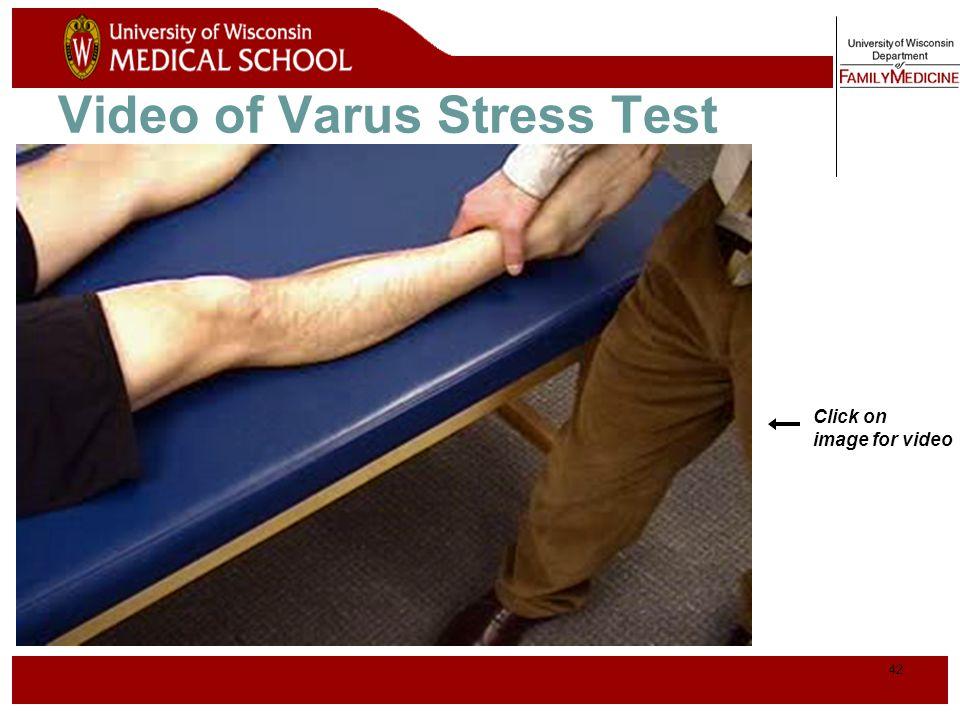 43 Lachman Test* Patient Position Physician hand placement