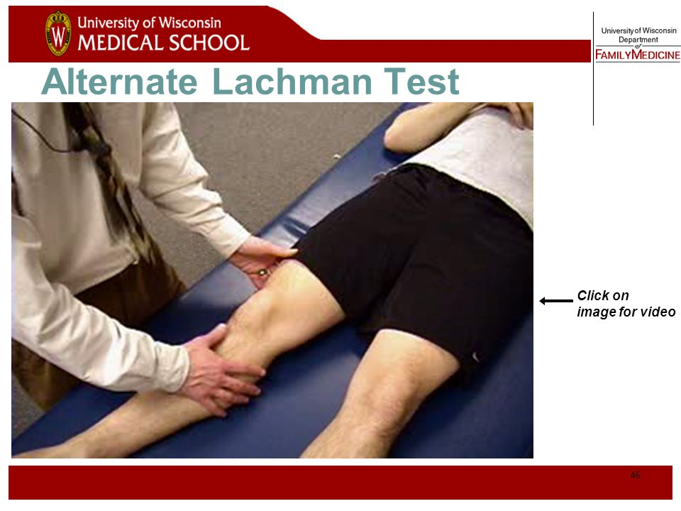 47 Anterior Drawer Test for ACL Physician Position & Movements* Patient Position Note direction of forces