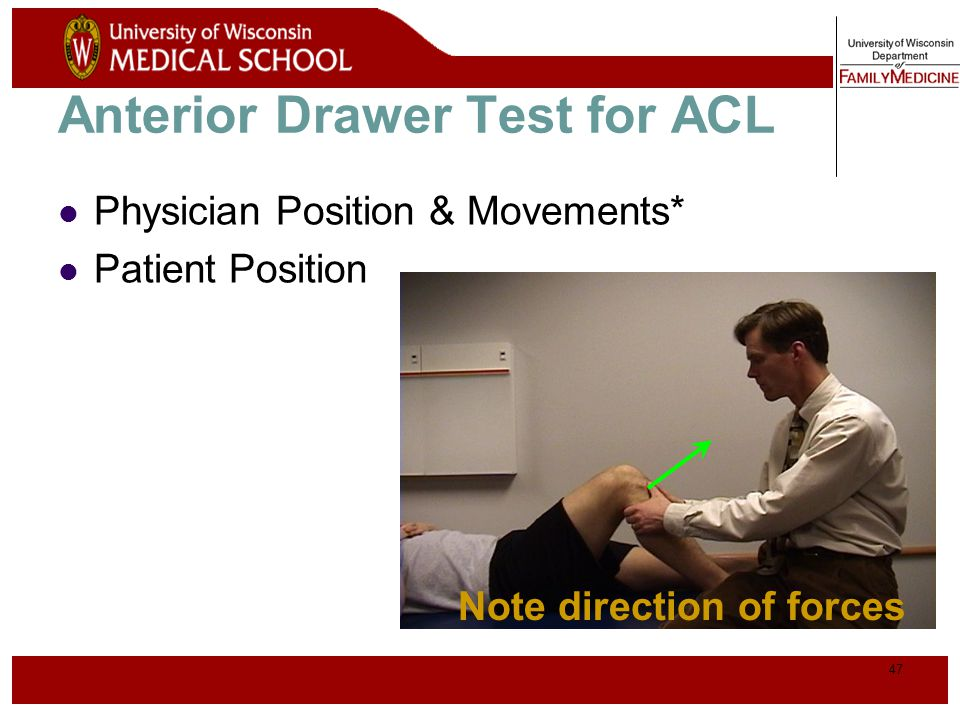 48 Posterior Drawer Testing- PCL* Note direction of forces