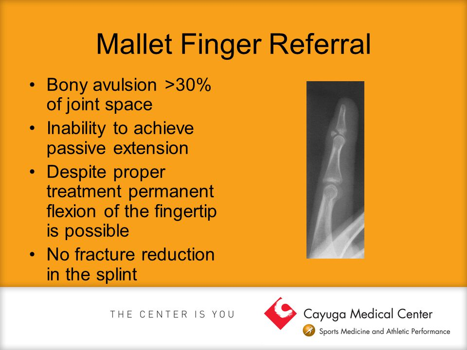 Mallet Finger Referral Bony avulsion >30% of joint space Inability to achieve passive extension Despite proper treatment permanent flexion of the fing
