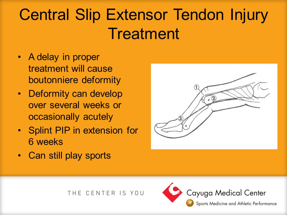Central Slip Extensor Tendon Injury Treatment A delay in proper treatment will cause boutonniere deformity Deformity can develop over several weeks or