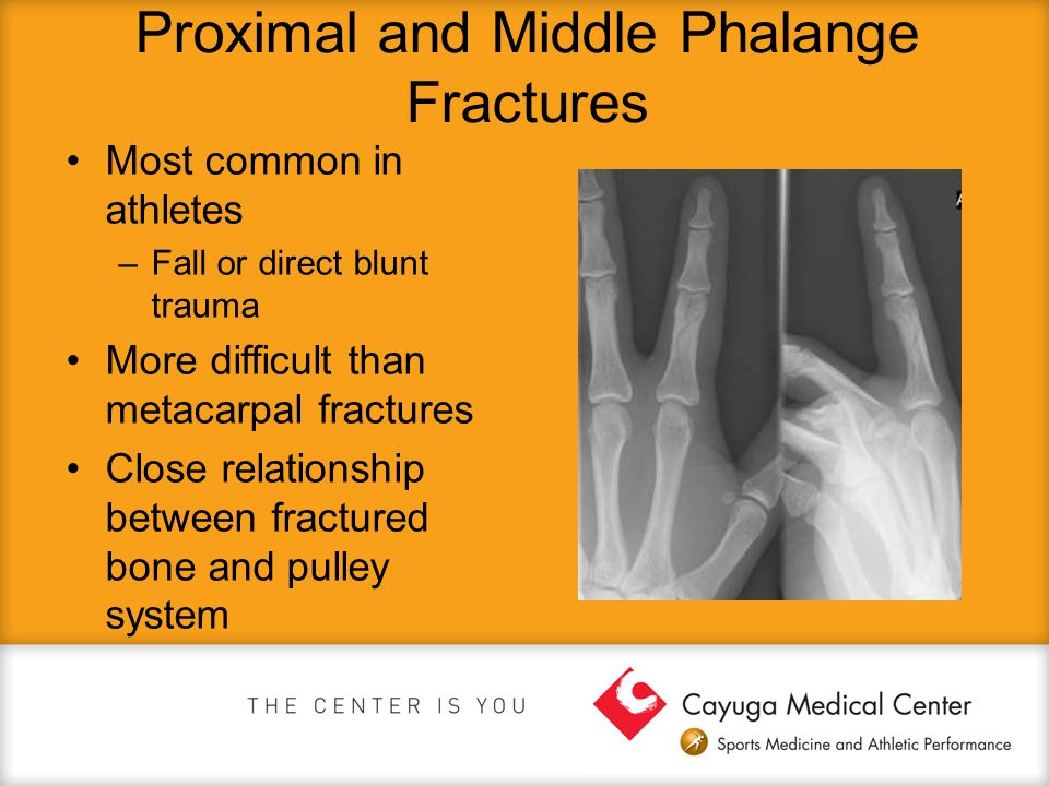 Proximal and Middle Phalange Fractures Most common in athletes –Fall or direct blunt trauma More difficult than metacarpal fractures Close relationshi