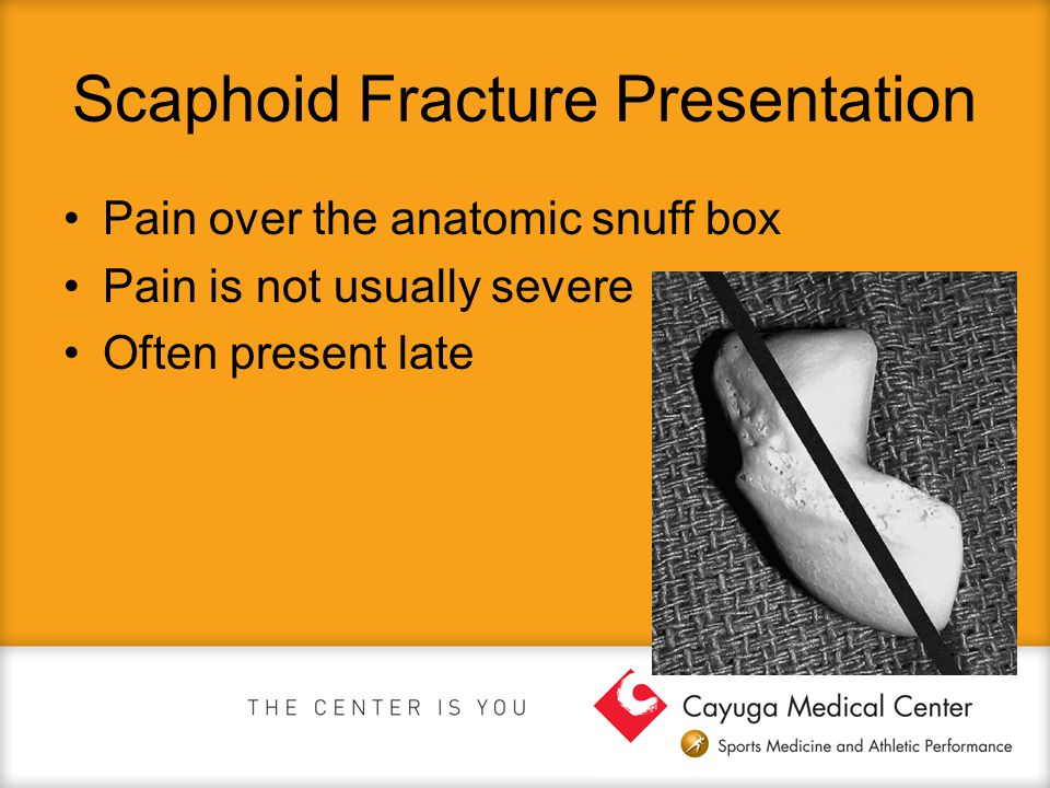 Scaphoid Fracture Presentation Pain over the anatomic snuff box Pain is not usually severe Often present late