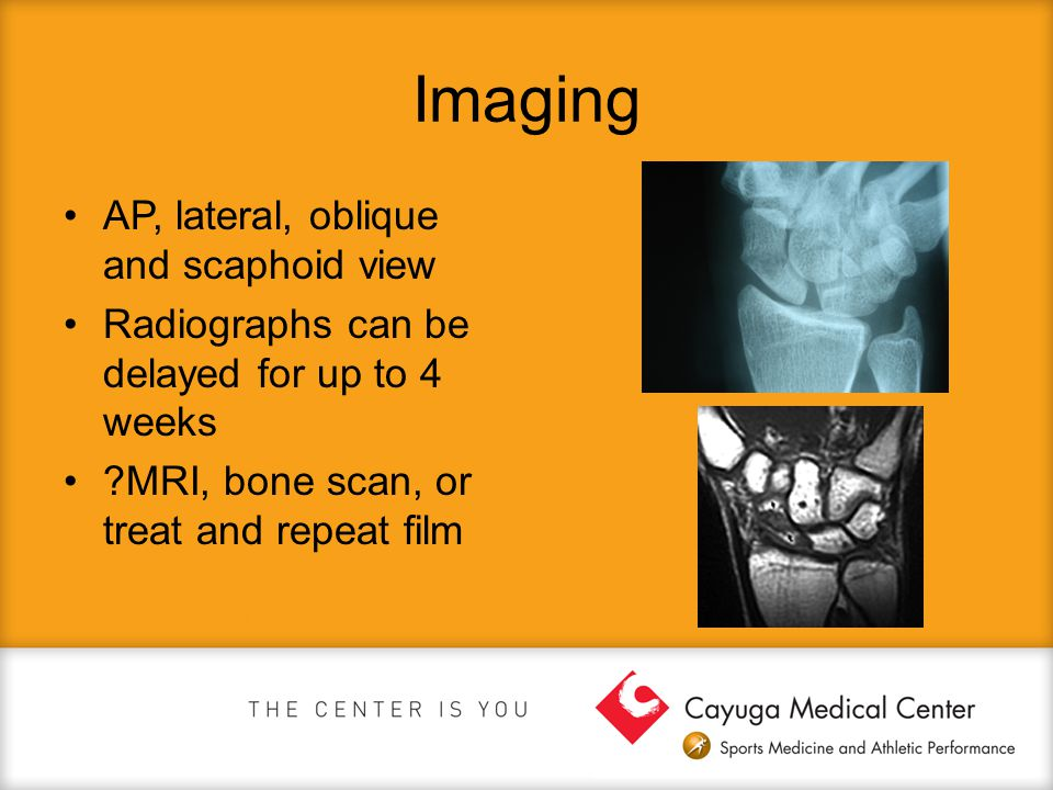 Imaging AP, lateral, oblique and scaphoid view Radiographs can be delayed for up to 4 weeks ?MRI, bone scan, or treat and repeat film
