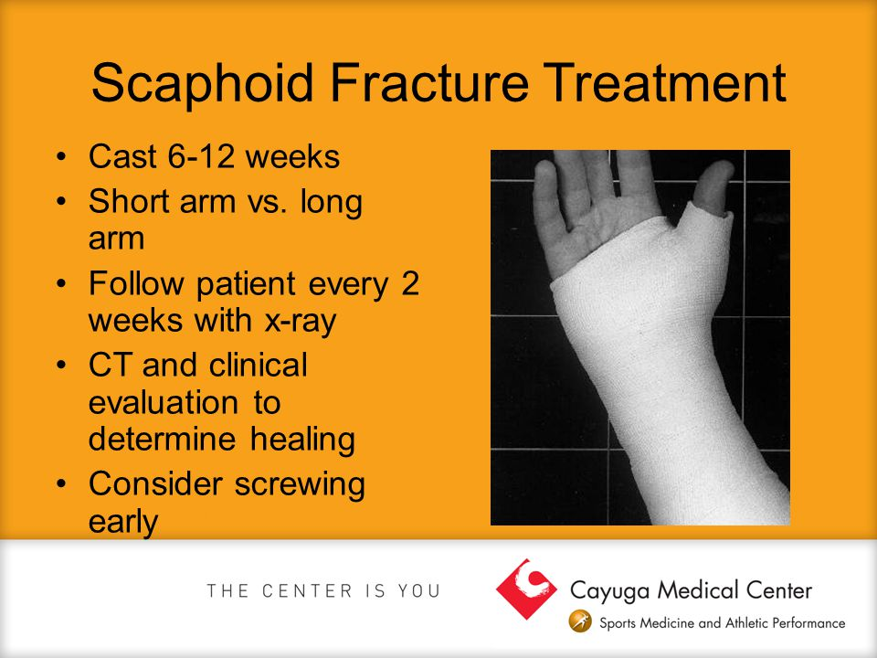 Scaphoid Fracture Treatment Cast 6-12 weeks Short arm vs. long arm Follow patient every 2 weeks with x-ray CT and clinical evaluation to determine hea