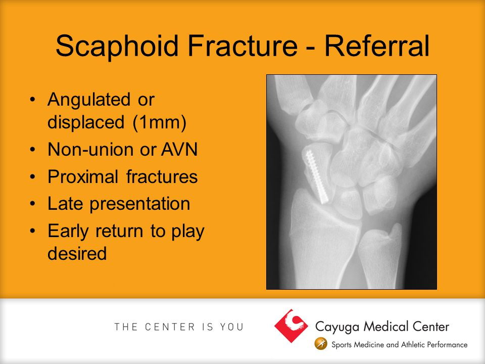 Scaphoid Fracture - Referral Angulated or displaced (1mm) Non-union or AVN Proximal fractures Late presentation Early return to play desired