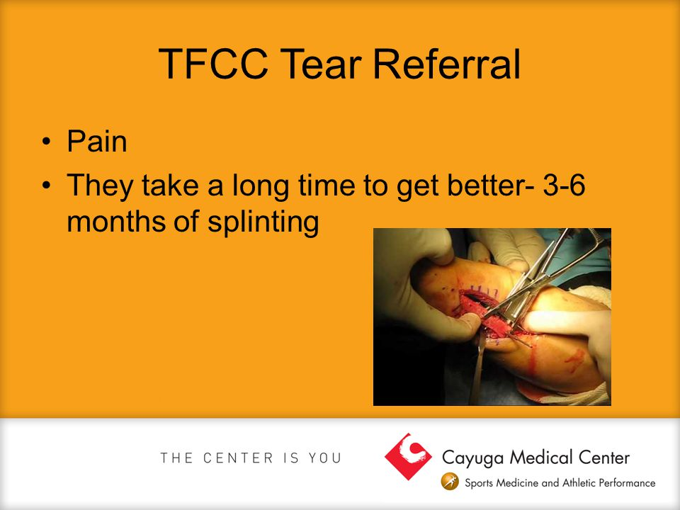 TFCC Tear Referral Pain They take a long time to get better- 3-6 months of splinting