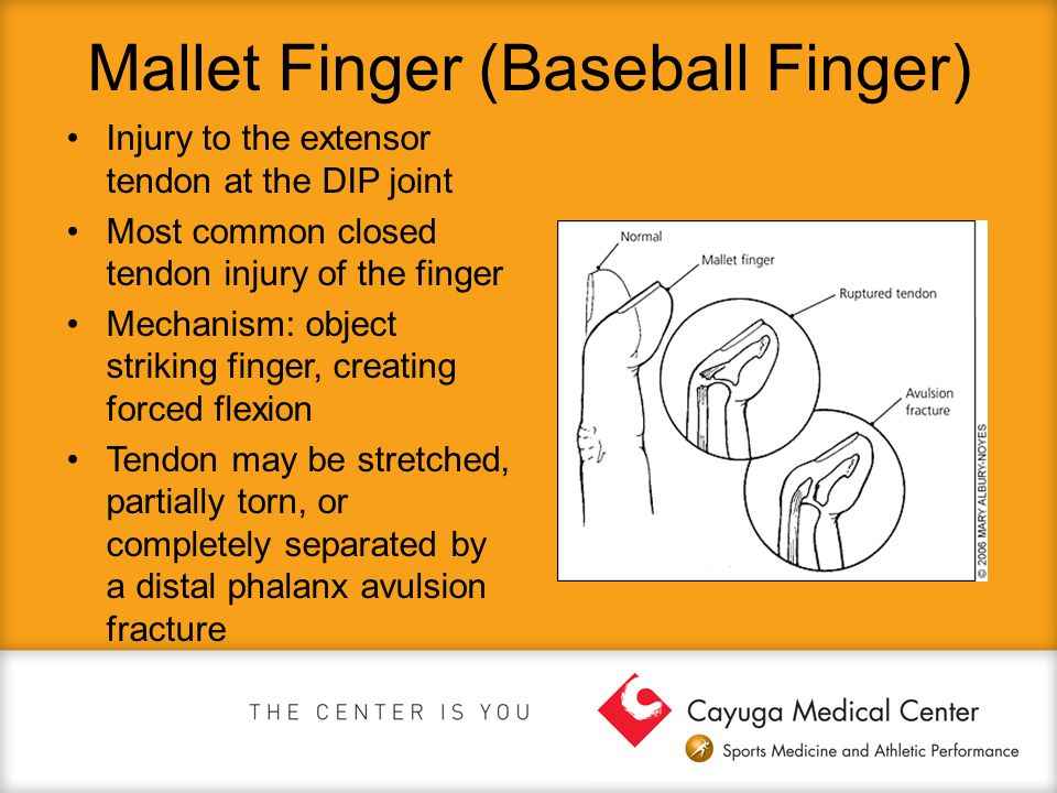 Mallet Finger (Baseball Finger) Injury to the extensor tendon at the DIP joint Most common closed tendon injury of the finger Mechanism: object striki