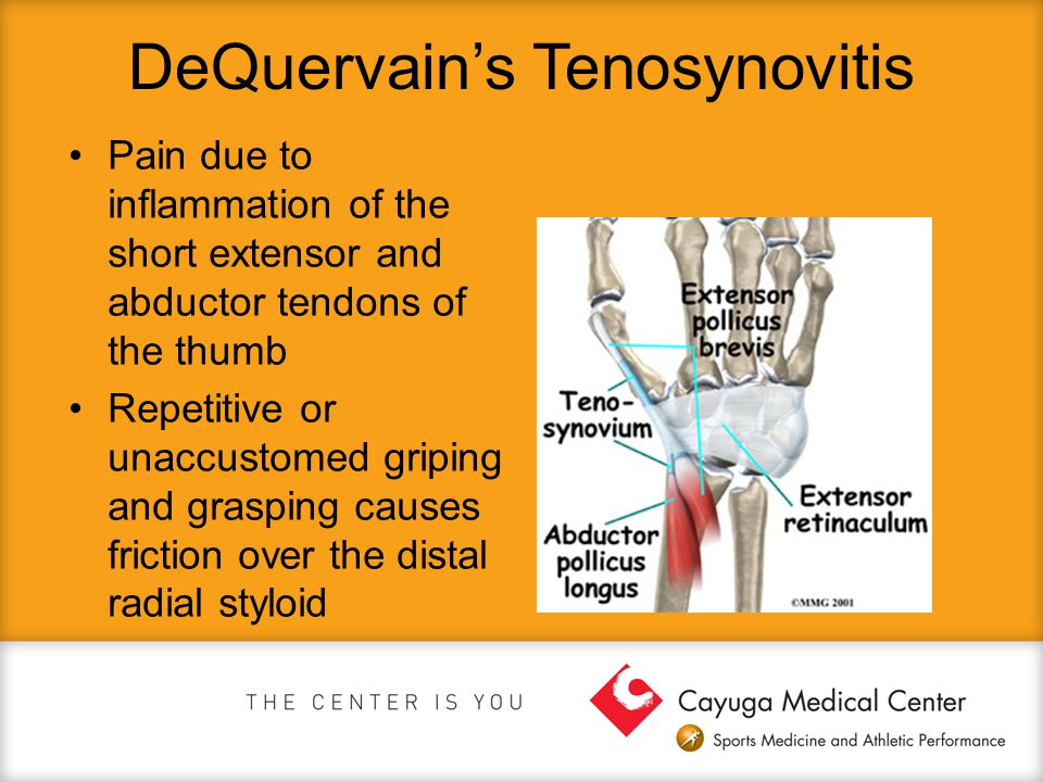 DeQuervain's Tenosynovitis Pain due to inflammation of the short extensor and abductor tendons of the thumb Repetitive or unaccustomed griping and gra