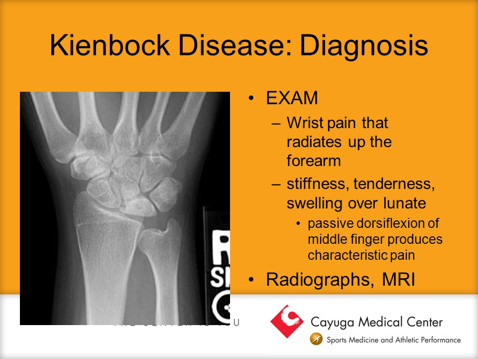 Kienbock Disease: Diagnosis EXAM –Wrist pain that radiates up the forearm –stiffness, tenderness, swelling over lunate passive dorsiflexion of middle
