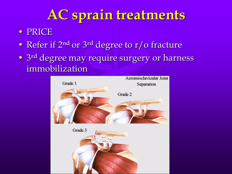AC sprain treatments PRICEPRICE Refer if 2 nd or 3 rd degree to r/o fractureRefer if 2 nd or 3 rd degree to r/o fracture 3 rd degree may require surgery or harness immobilization3 rd degree may require surgery or harness immobilization