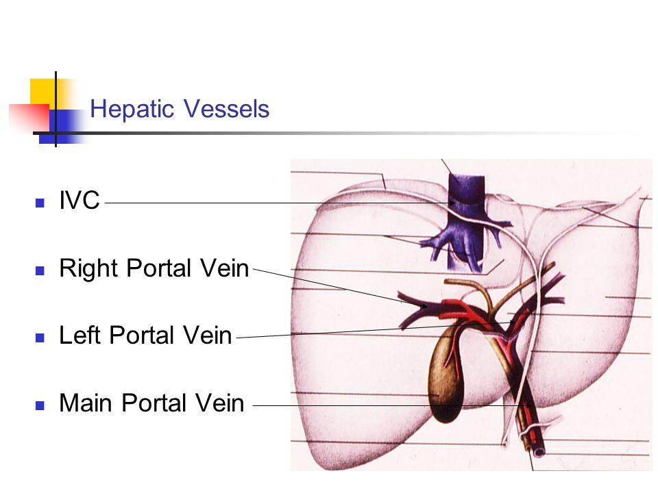 Hepatic Vessels IVC Right Portal Vein Left Portal Vein Main Portal Vein