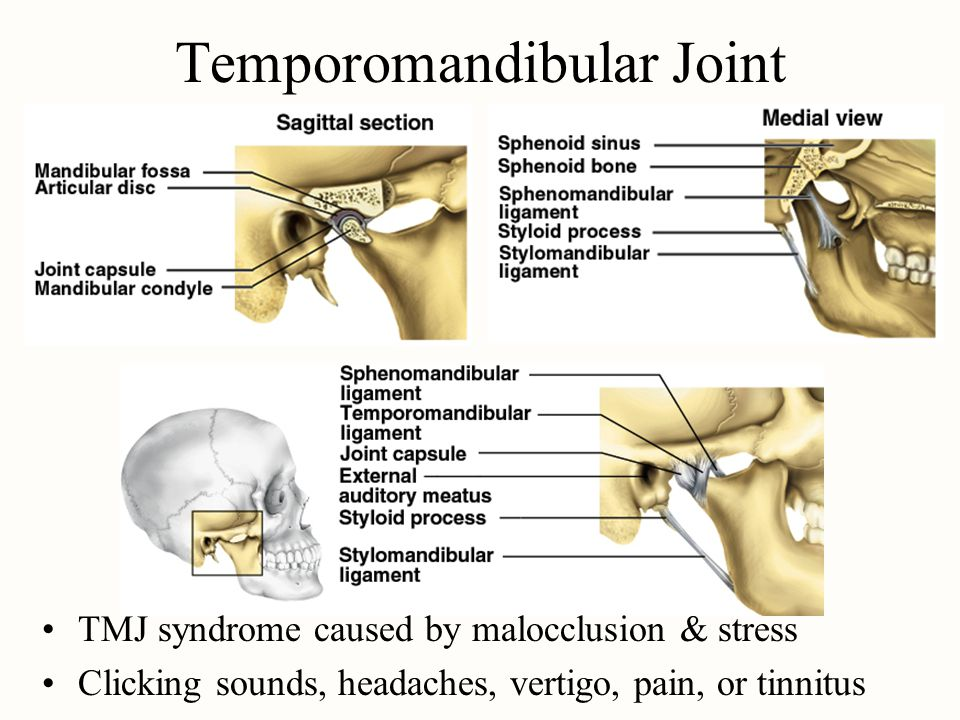 Temporomandibular Joint TMJ syndrome caused by malocclusion & stress Clicking sounds, headaches, vertigo, pain, or tinnitus