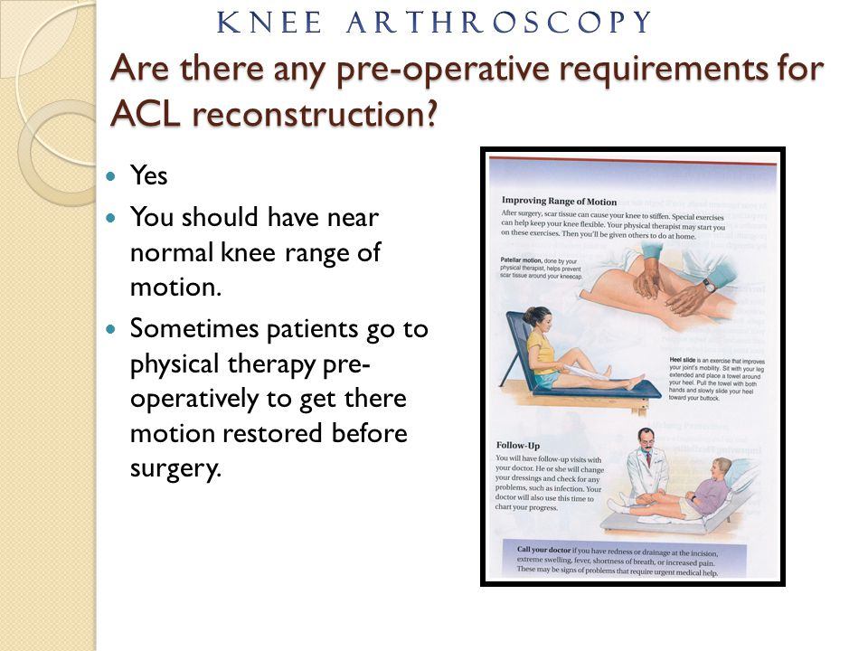 Are there any pre-operative requirements for ACL reconstruction? Yes You should have near normal knee range of motion. Sometimes patients go to physic