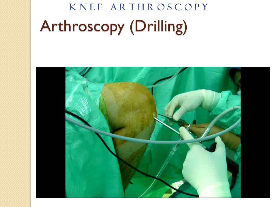 Arthroscopy (Drilling)