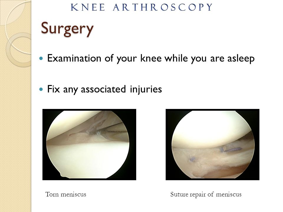 Surgery Examination of your knee while you are asleep Fix any associated injuries Torn meniscusSuture repair of meniscus