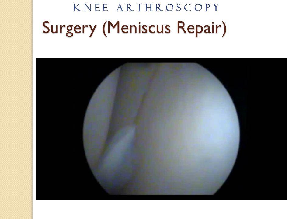 Surgery (Meniscus Repair)