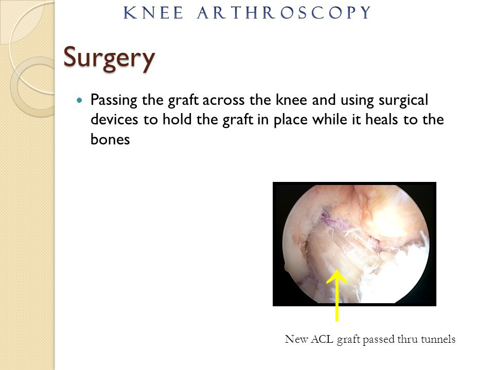 Surgery Passing the graft across the knee and using surgical devices to hold the graft in place while it heals to the bones New ACL graft passed thru