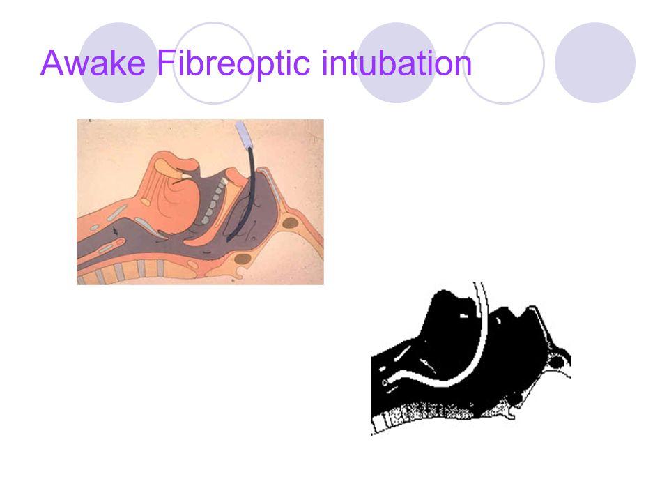Awake Fibreoptic intubation