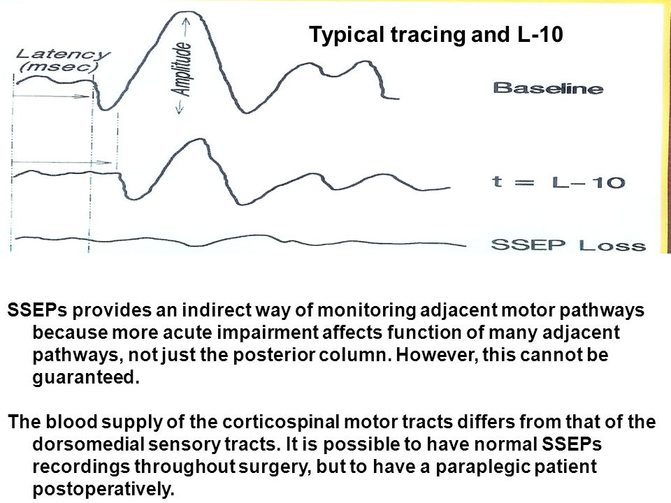 SSEPs provides an indirect way of monitoring adjacent motor pathways because more acute impairment affects function of many adjacent pathways, not just the posterior column.