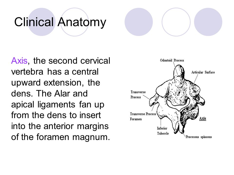 Clinical Anatomy Axis, the second cervical vertebra has a central upward extension, the dens.