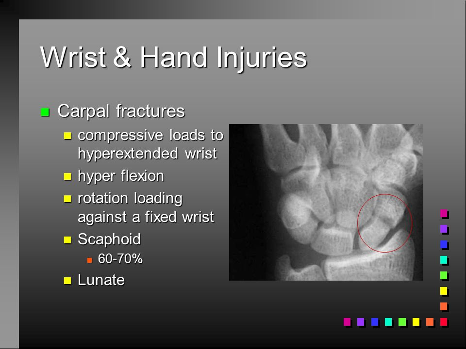 Wrist & Hand Injuries n Carpal tunnel (CTS) n result from repetitive stress to tissue n 64% of work injuries n Compressive neuropathy n Wrist flexion/ext and finger movements n Risk factors n exertion n repetitive stress n posture n localized contact n cold
