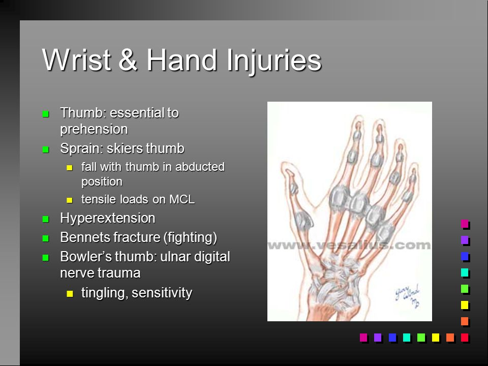 Wrist & Hand Injuries n Carpal fractures n compressive loads to hyperextended wrist n hyper flexion n rotation loading against a fixed wrist n Scaphoid n 60-70% n Lunate