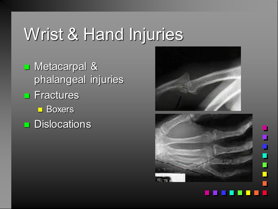 Wrist & Hand Injuries n Thumb: essential to prehension n Sprain: skiers thumb n fall with thumb in abducted position n tensile loads on MCL n Hyperextension n Bennets fracture (fighting) n Bowler's thumb: ulnar digital nerve trauma n tingling, sensitivity