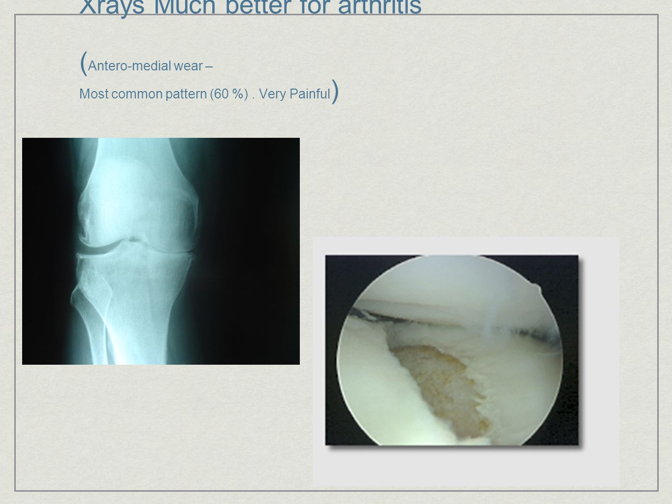 Xrays Much better for arthritis ( Antero-medial wear – Most common pattern (60 %). Very Painful )