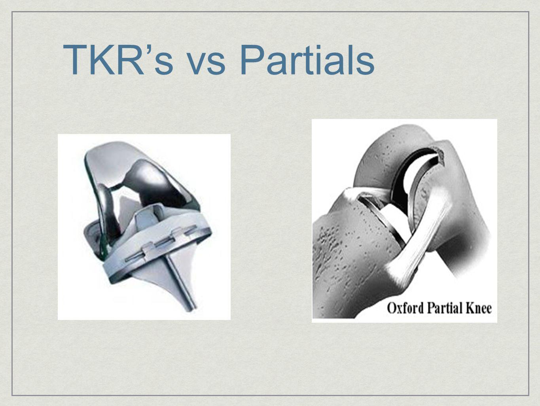 TKR's vs Partials