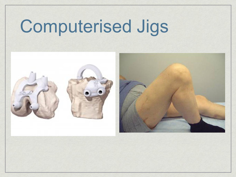 Computerised Jigs