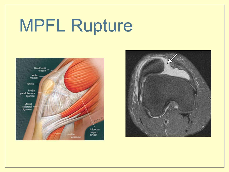 MPFL Rupture